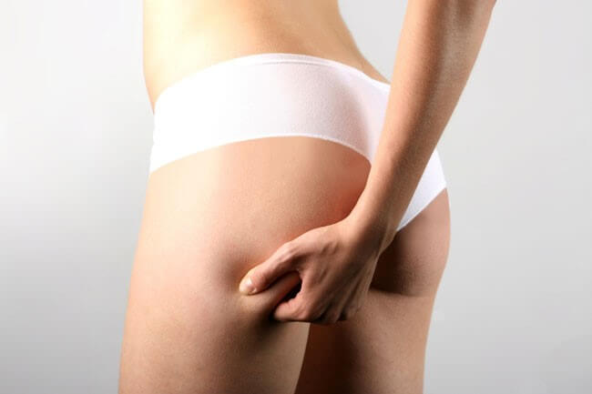 Cellulite Destroyer System Review - Is It A Scam Or Legit